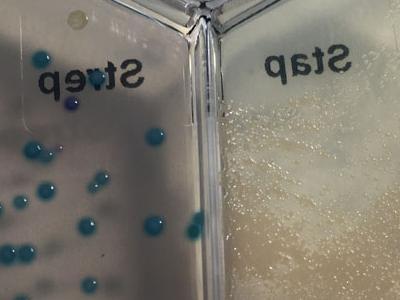 Streptococcus dysgalactiae